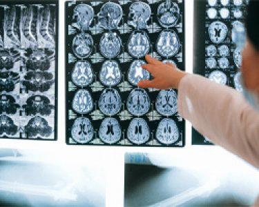 danocerebral-250x200-1.jpg