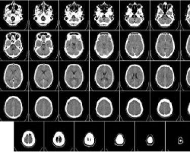 danocerebral-adquirido-250x200-1.jpg